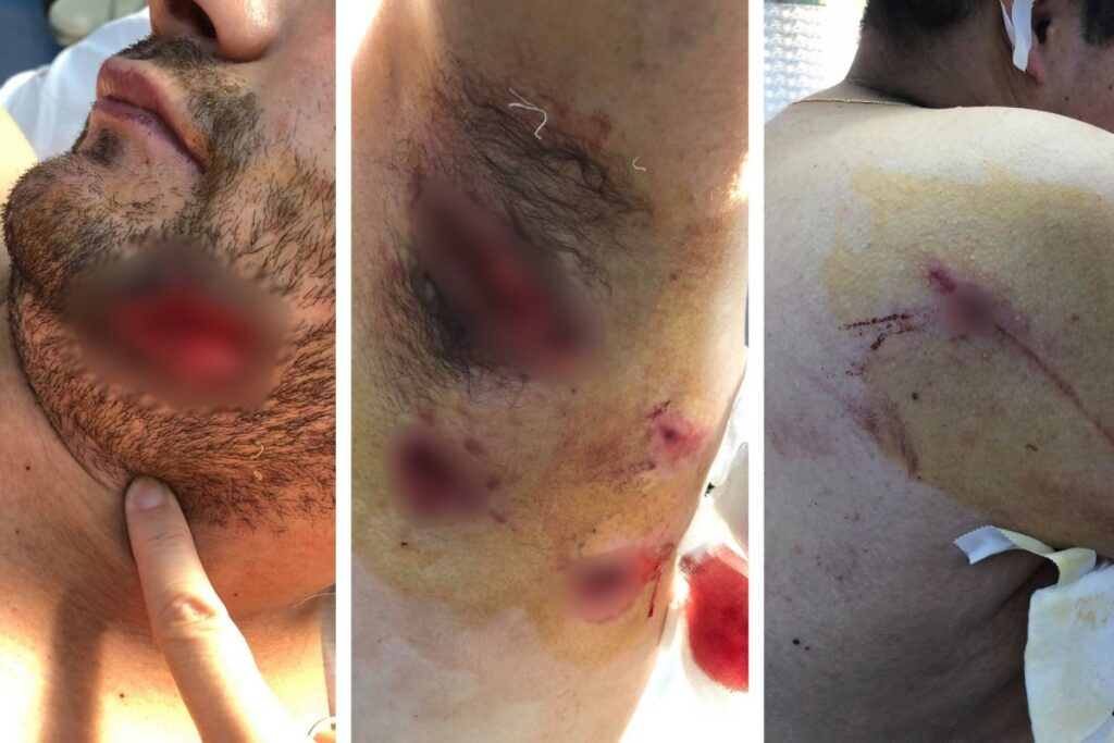 Man attacked by a bear